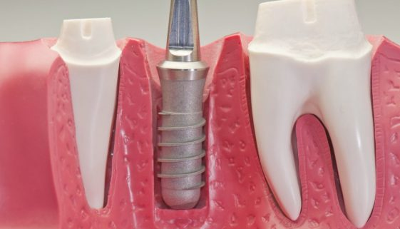 Seattle Smiles Dental Implant Model
