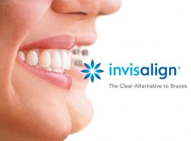 Seattle Smiles Dental – Invisalign