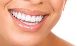 Seattle Smiles Dental – Whitening Services