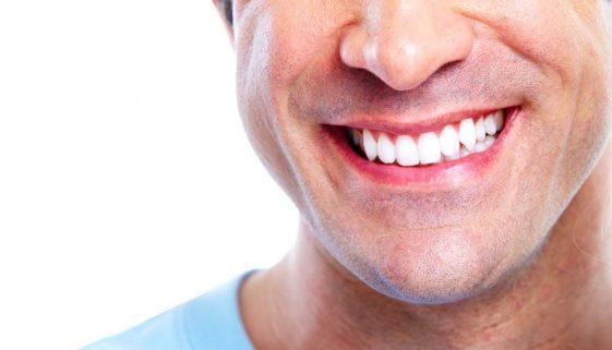 Seattle Smiles Dental – Silver Diamine Fluoride, Cavity-Stopping Liquid