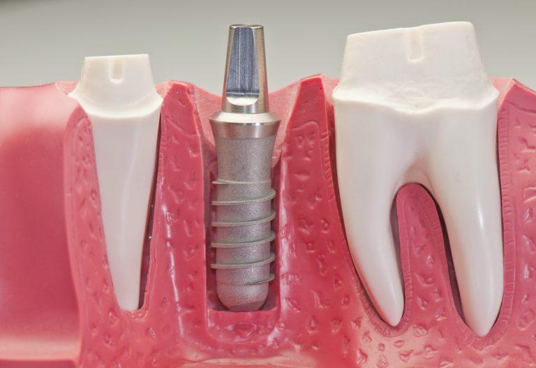 Seattle Smiles Dental Implant Model