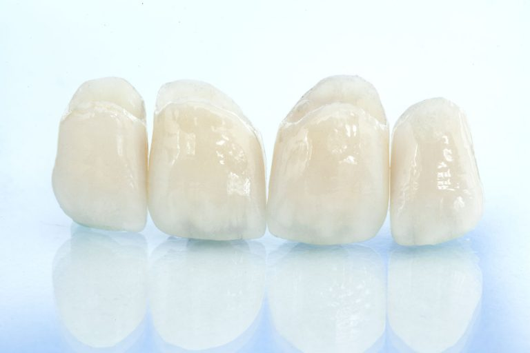 Seattle Smiles Dental – Crowns
