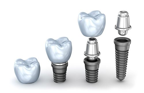 Implant crown attaches to an abutment which is attached to the implant