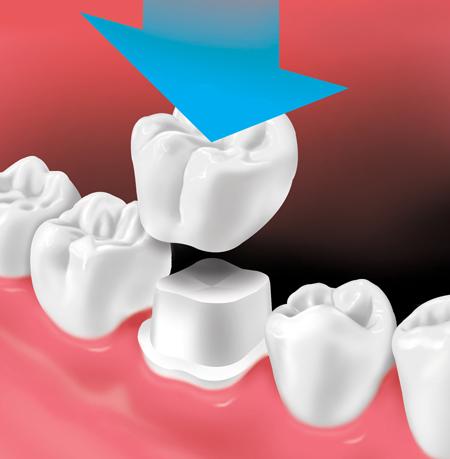Seattle Smiles Dental – Crown and Bridge