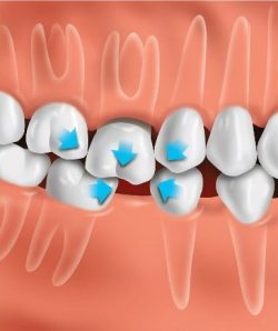Teeth can drift if tooth is not replaced