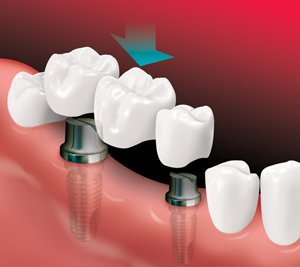Seattle Smiles Dental – Implant Bridge