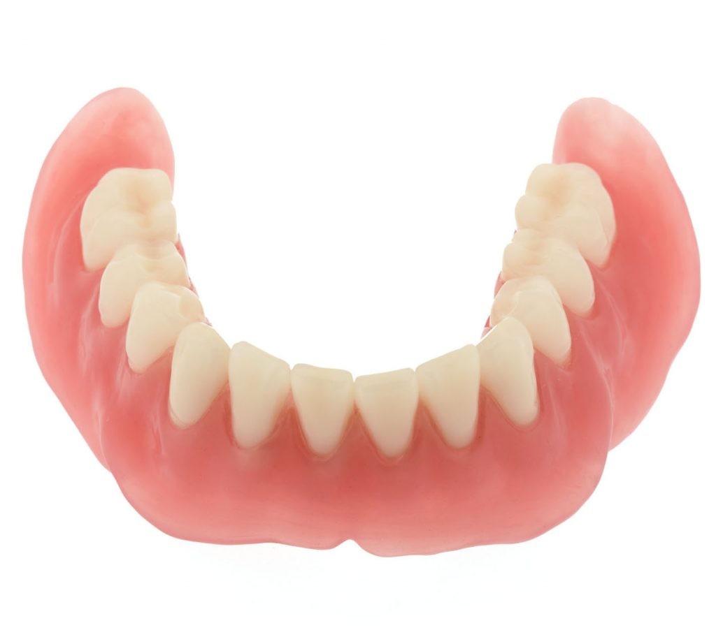 Seattle Smiles Dental – Full lower denture