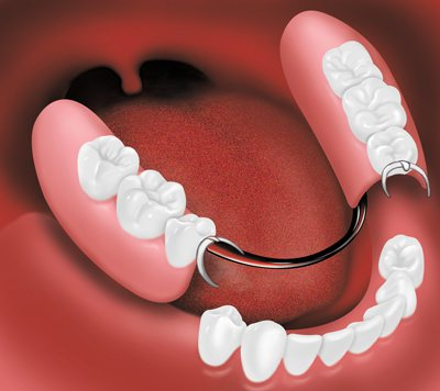 Seattle Smiles Dental – Partial denture