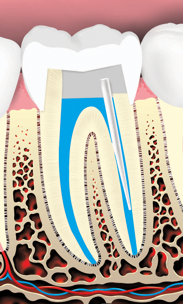 Tooth is then restored with a crown or filling