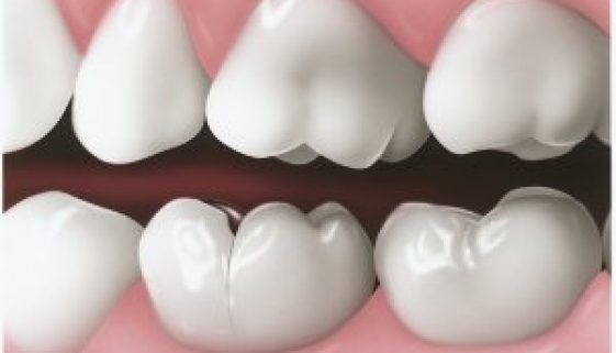 Seattle Smiles Dental – Cracked Tooth