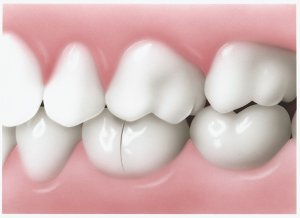 Seattle Smiles Dental – Cracked Tooth Widens