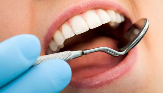 Seattle Smiles Dental – Fillings
