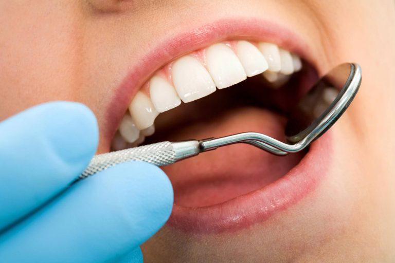 Seattle Smiles Dental – Fillings