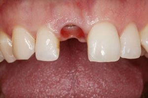 Implant has been placed but not yet restored with a crown