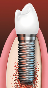 Seattle Smiles Dental – Dental implant and implant crown