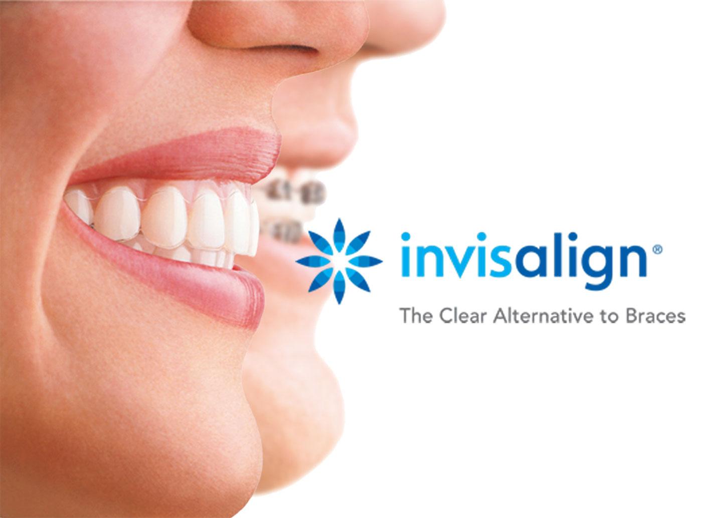 Seattle Smiles Dental – Invisalign