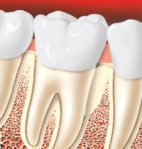 Periodontal Grafting