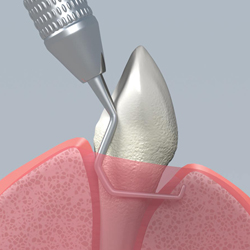 Periodontal Scaling