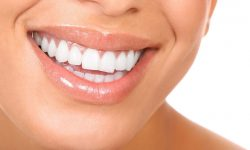 Seattle Smiles Dental – Whitening Services