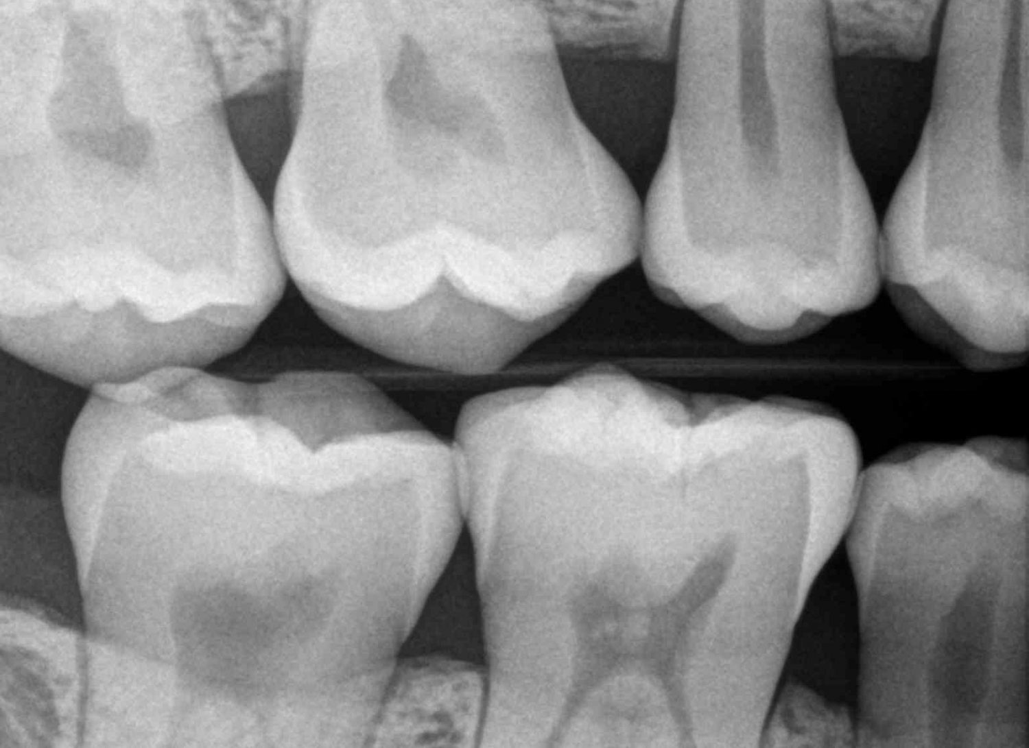 Seattle Smiles Dental – Digital Xrays