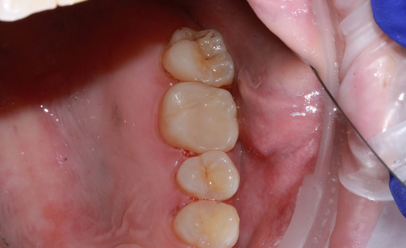 amalgam to composite tooth colored fillings